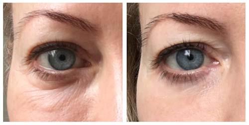 oogcreme-oogcontourcreme
